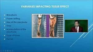 Laparoscopic Hysterectomy by Dr. R.K. Mishra and Bhagyashree