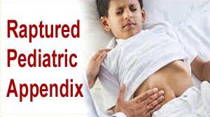 Laparoscopic Management of Rupture Pediatric Appendix in Pediatric Patient