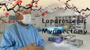 Laparoscopic Myomectomy HD Video for Multiple Myoma using Mishra's Knot