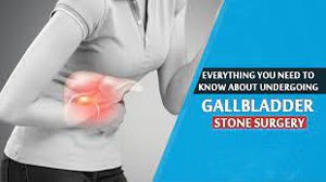 Surgery for Gallbladder Stone