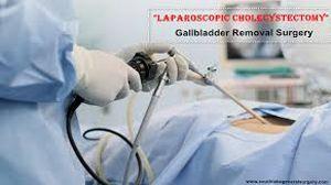 Laparoscopic Cholecystectomy in Cirrhosis Patient