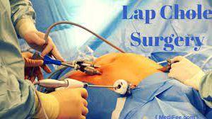 Laparoscopic Cholecystectomy (Lap Chole) Full Surgery Video