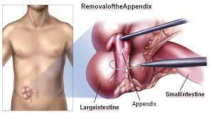 Dr R K Mishra Demonstrating Laparoscopic Appendicectomy