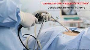 Laparoscopic Cholecystectomy using Mishra's Knot