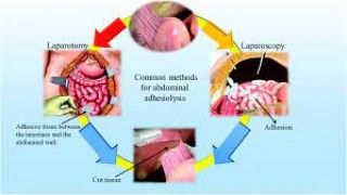 Fibrin Glue for Adhesion Prevension after Laparoscopic Surgery