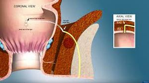 Video Assisted Anal Fistula Treatment (VAAFT)