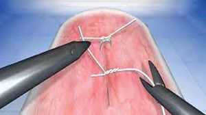 How to learn da Vinci Robotic Suturing and Knotting